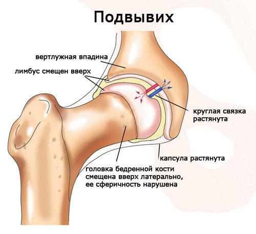 тазобедренный сустав симптомы болезни фото